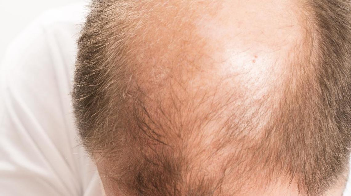Dermatologists Recommend Fue Hair Transplant for Permanent Natural-Looking Results