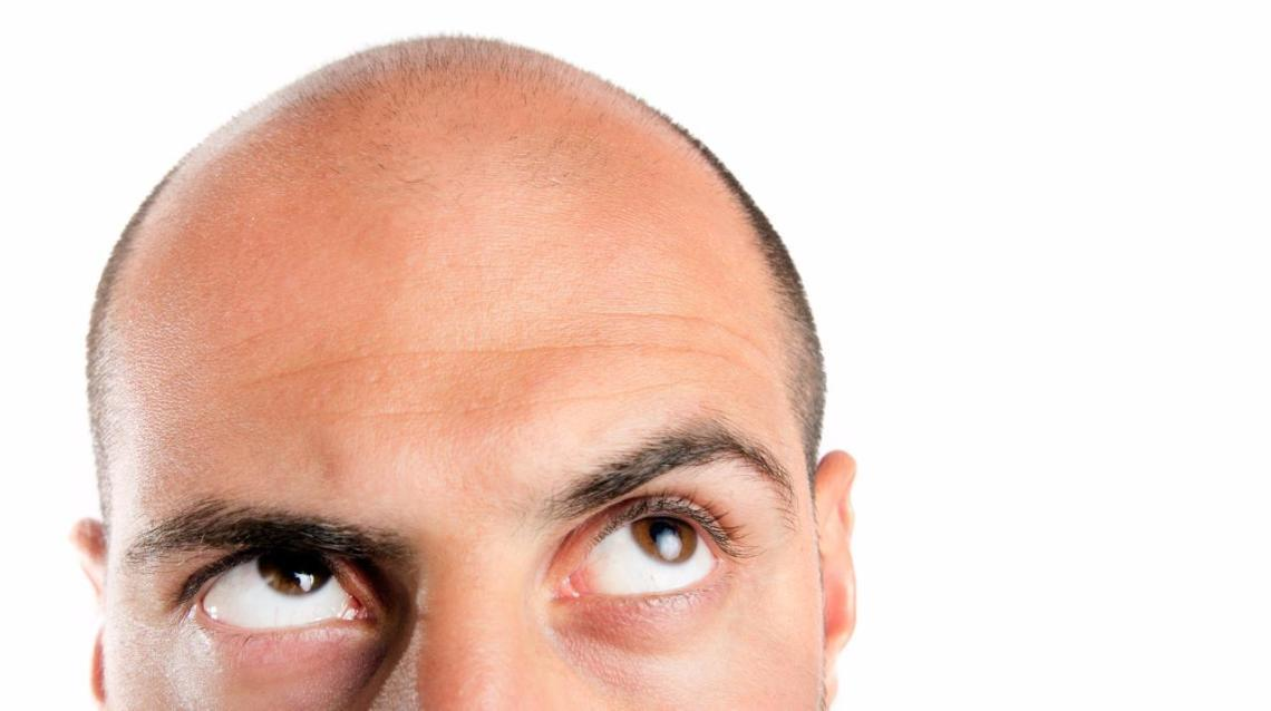 Common Causes of Hair Loss