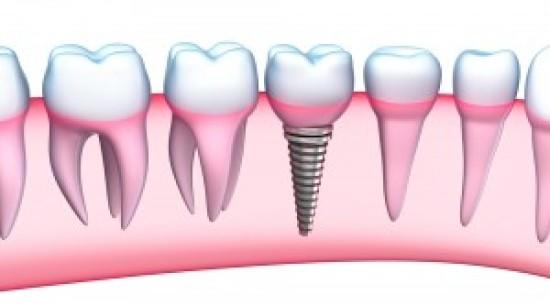 Get Dental Implants at Smile Up Dental Care & Implant Center