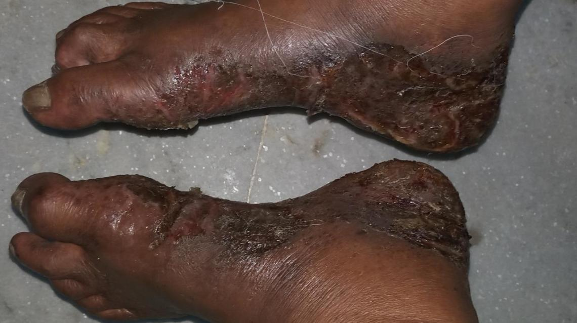 Wet Eczema: Scary Look but Must Know!