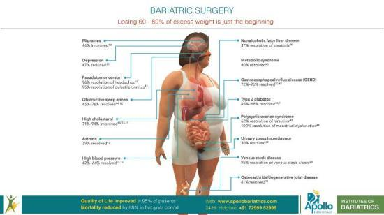 Benefits of Bariatric & Metabolic Surgery