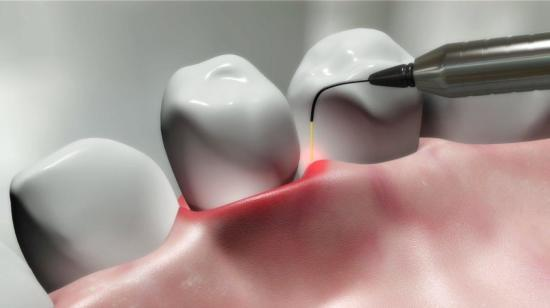 Beam Me Up: Lasers in Dentistry