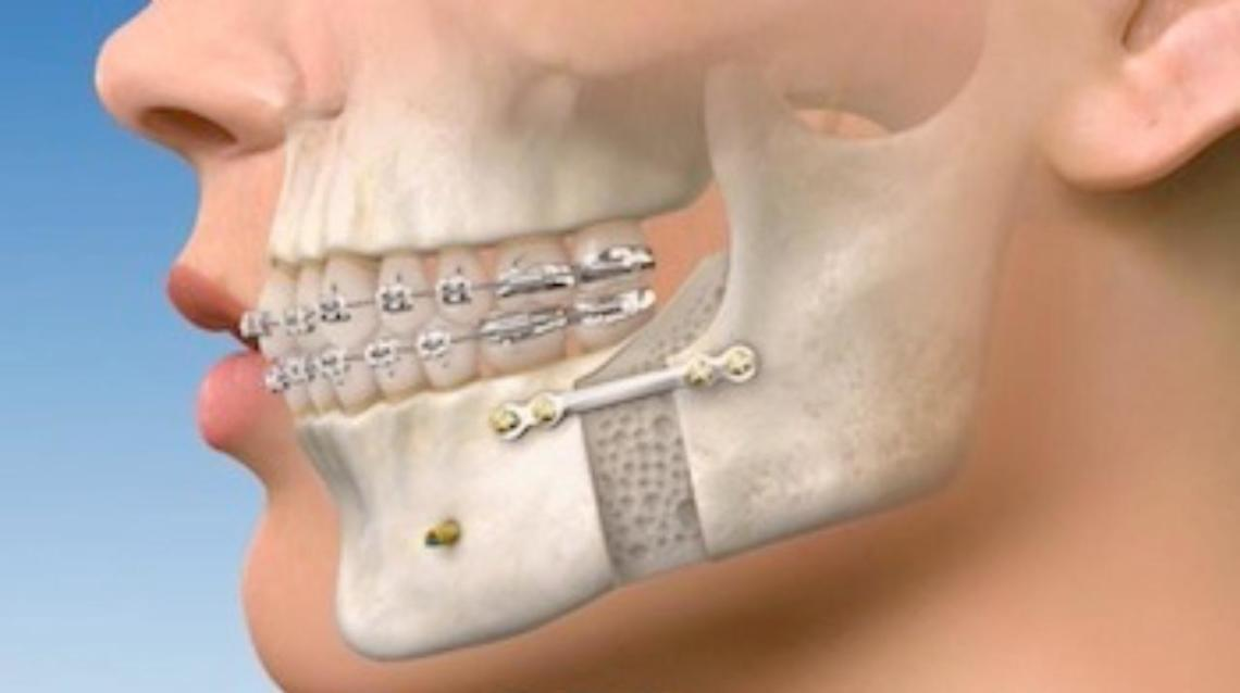 Jaw Reshaping - Yes , Its Possible!