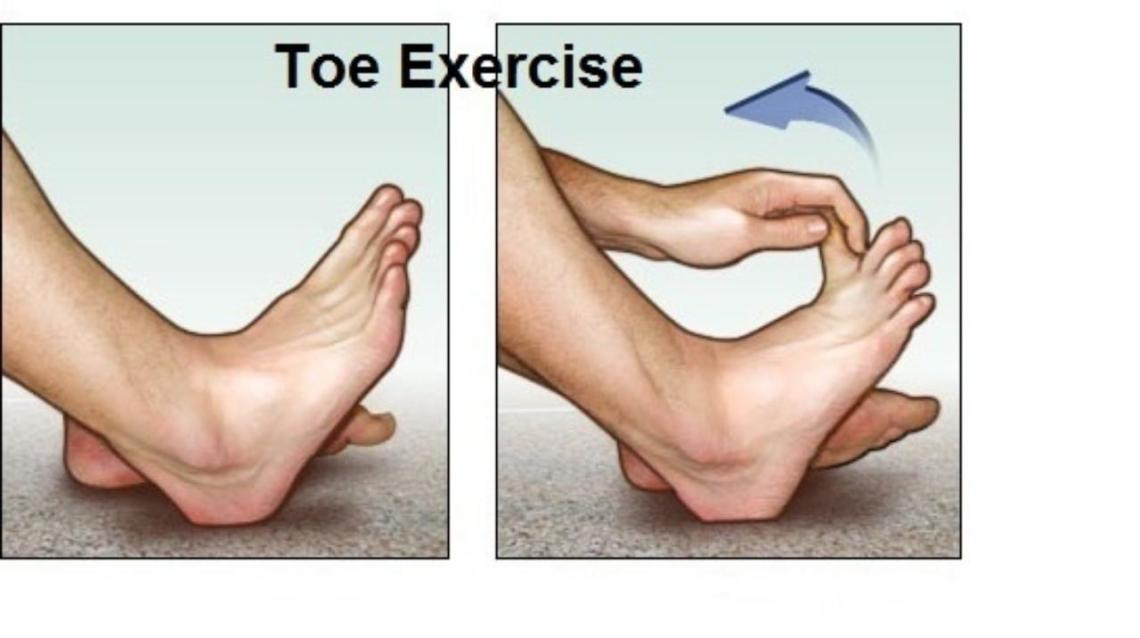 Homeopathy Treatment for Heel Pain (Plantar Fascitis)