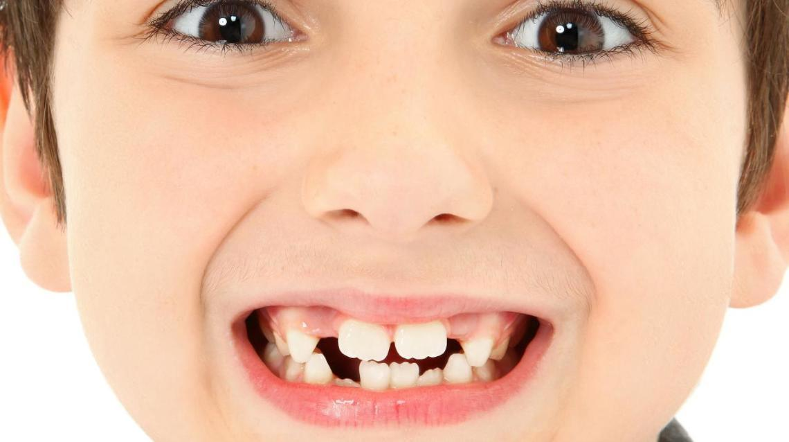 Role of Preventive Dentistry in Kids/ Deciduous/ Milk Teeth