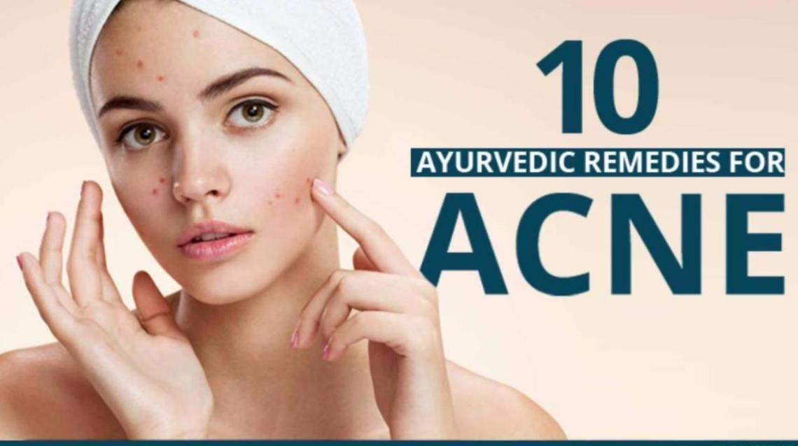 10 Ayurvedic Remedies for Acne