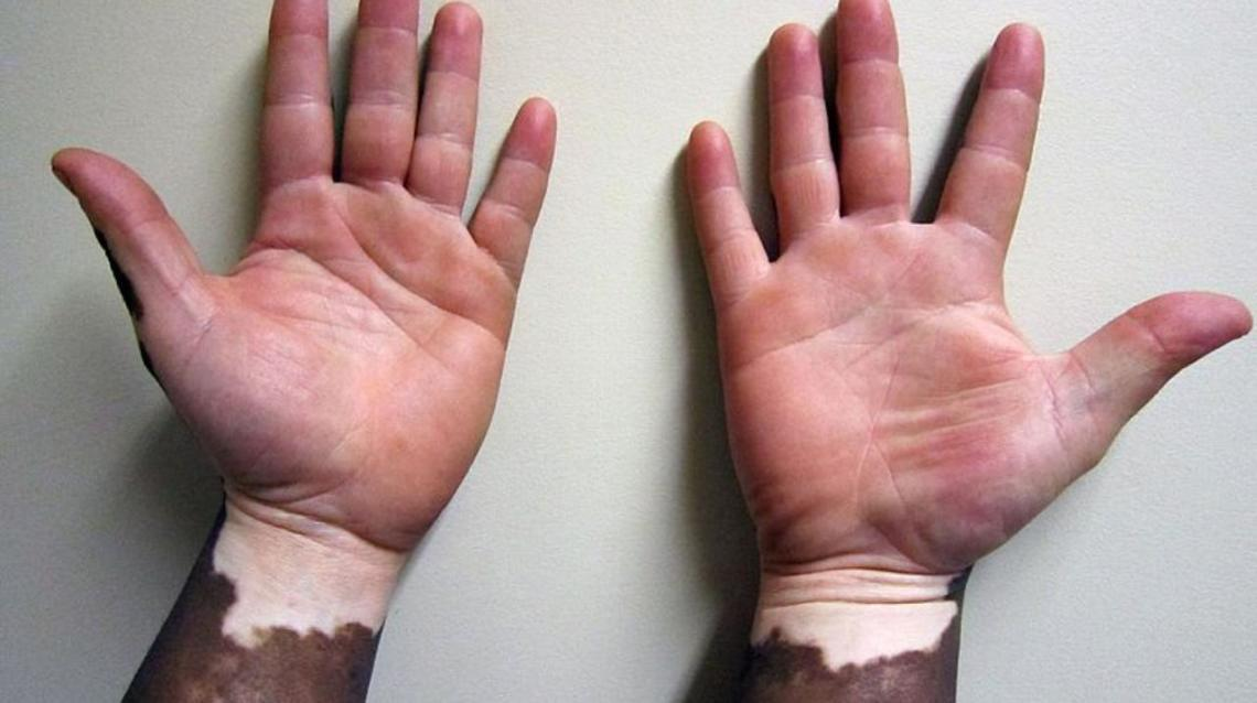 Common Myths and Facts About Vitiligo