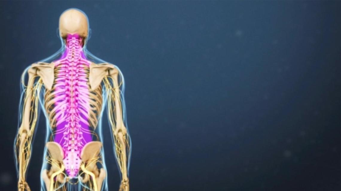 Physiotherapy Treatment for Spinal Arachnoiditis
