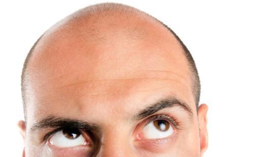 Platelet Rich Plasma Treatment for Hair Fall
