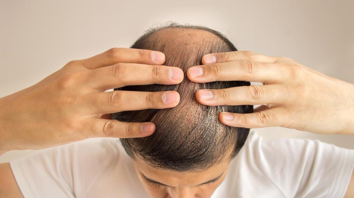What Does Healthy Hair Mean? Baldness Patterns in Men and Women
