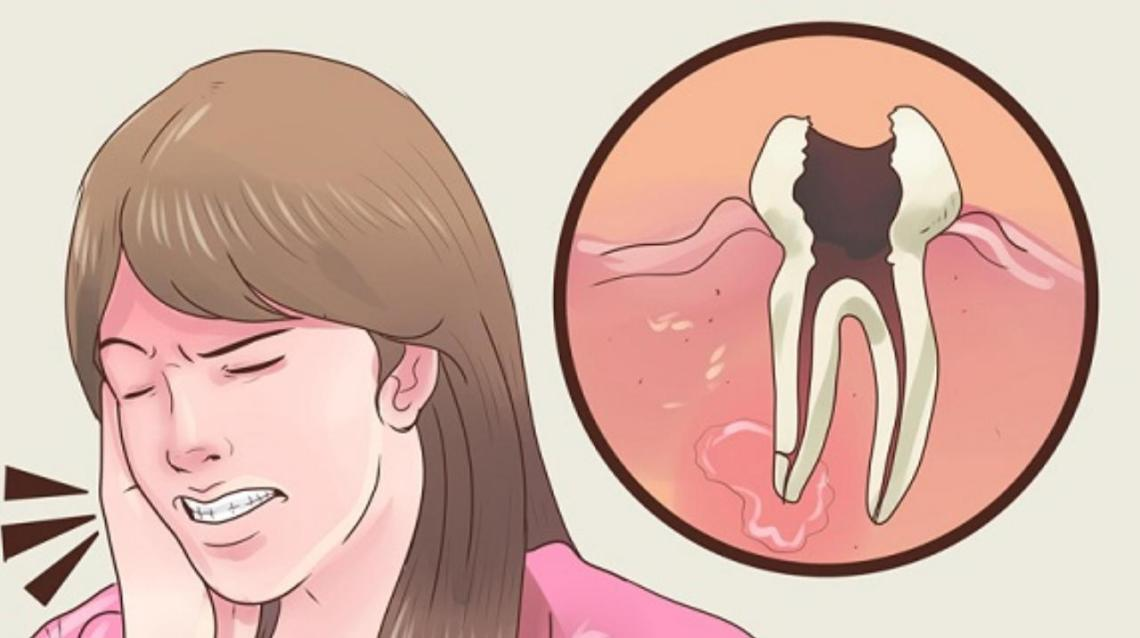 How to Prevent Caries and Tooth Ache.