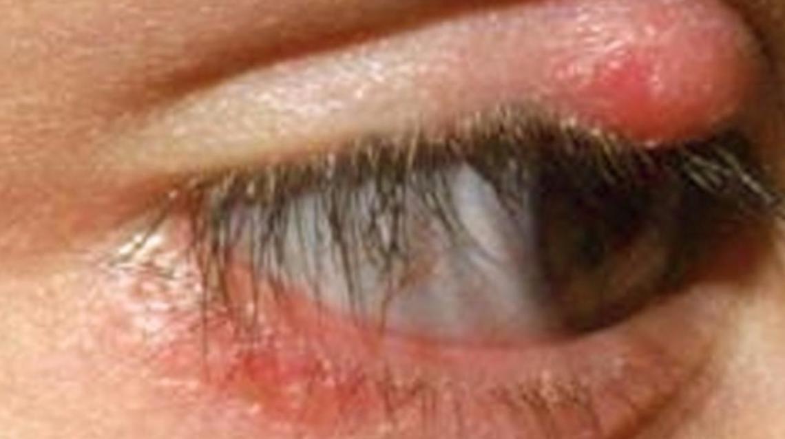 Eyelid Stye Treatment - I Have A Stye On My Eyelid For The