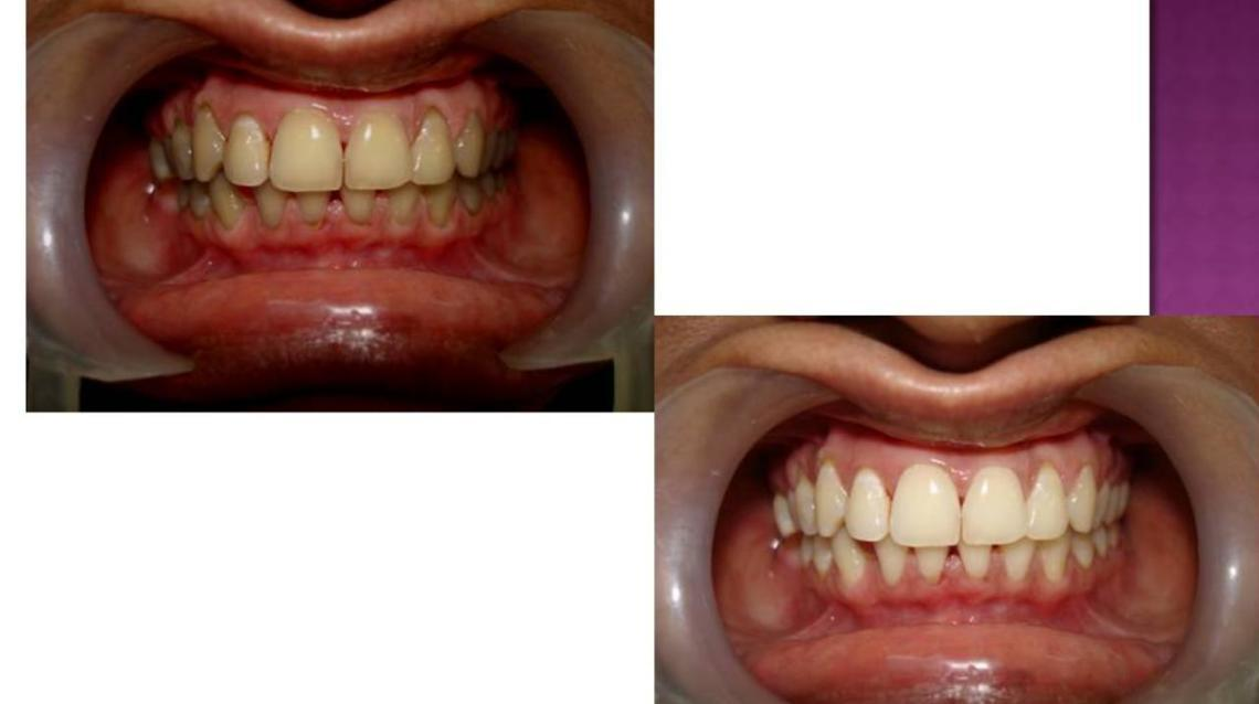 Dental Bleaching/teeth Whitening