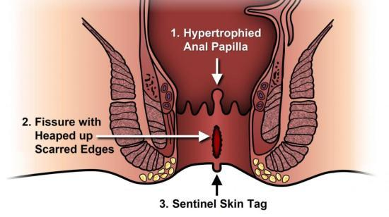 Anal Fissure- the Culprit of Anal Pain