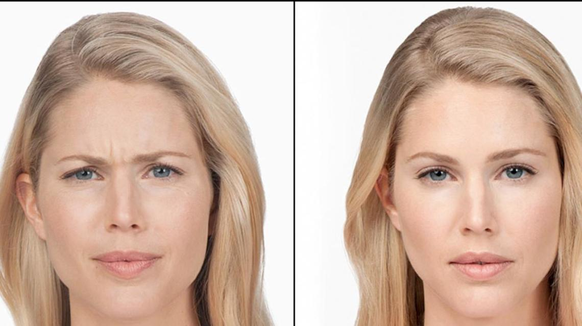 Botox- the Wonder Shot. Is It Worth the Hype?