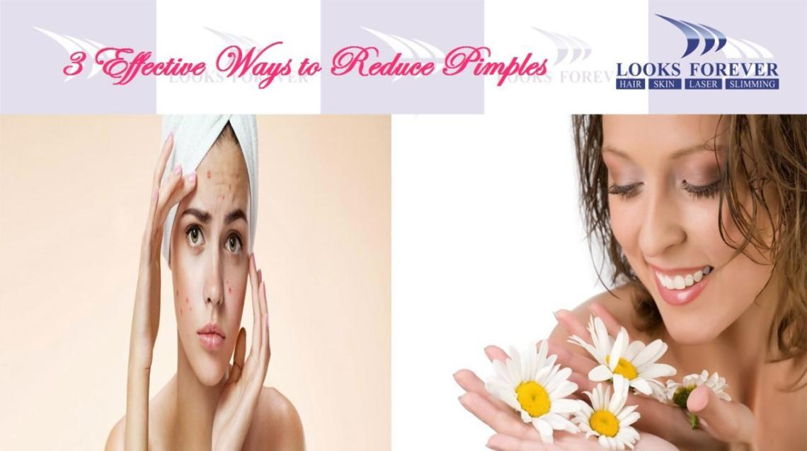 3 Effective Ways to Reduce Pimples