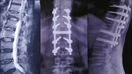 Tuberculosis of Spine and Conus Medullaris Syndrome