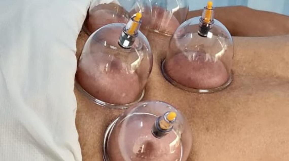 Cupping for Chronic Back and Lower Back Pain