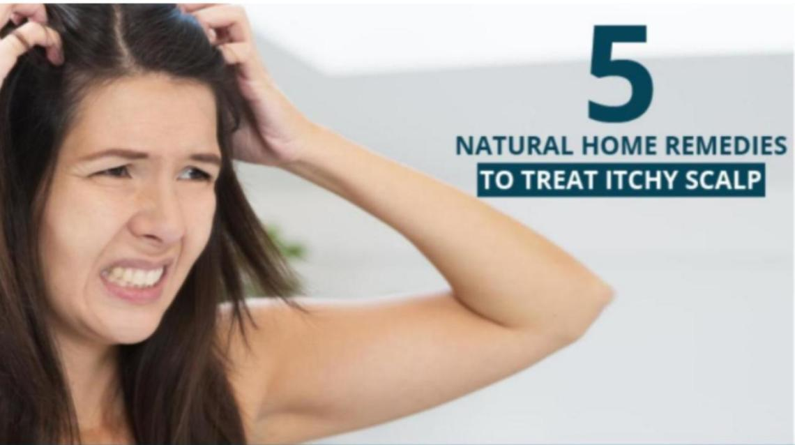 5 Natural Home Remedies to Treat Itchy Scalp