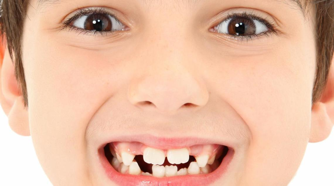 What Really Causes Crooked Teeth?