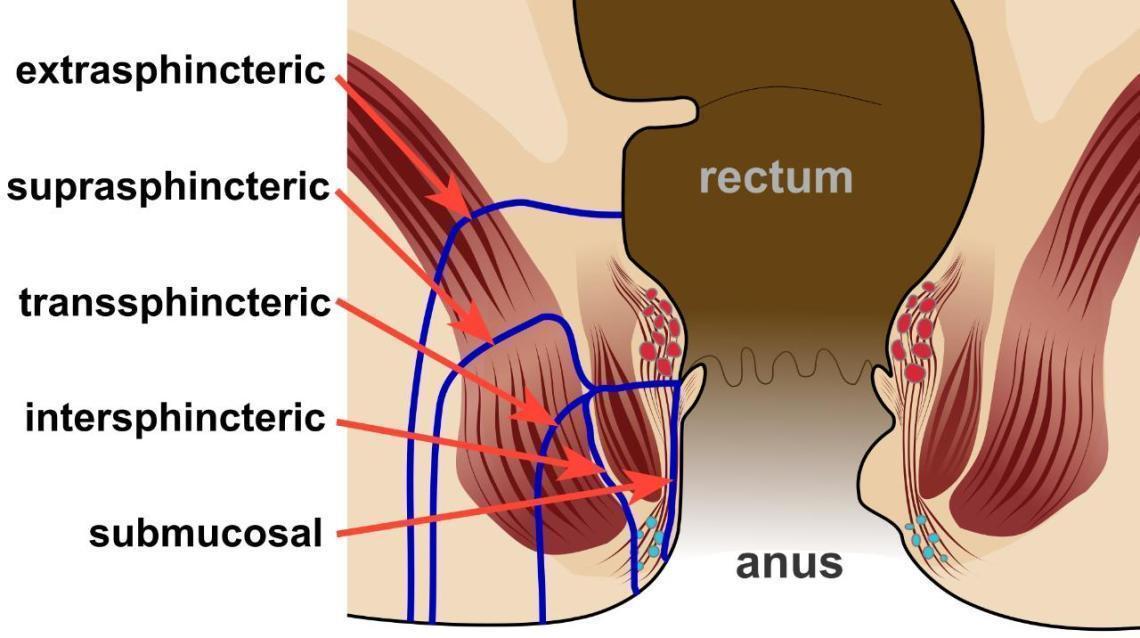 Facts About Fistula