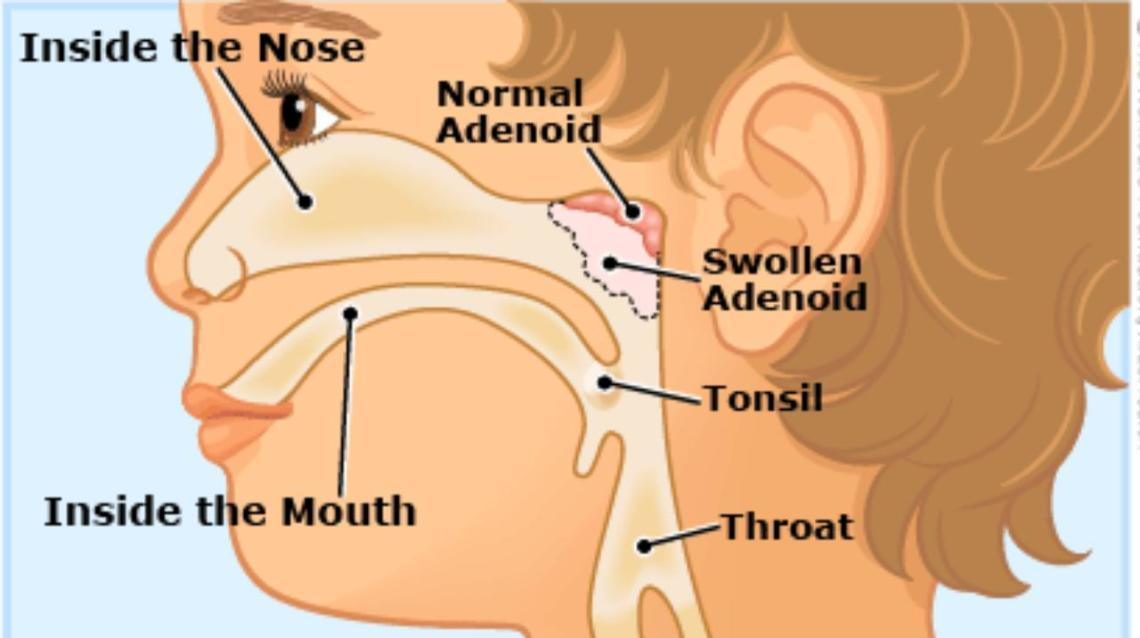 Homoeopathy Offers Best Treatment For Enlarged Adenoids