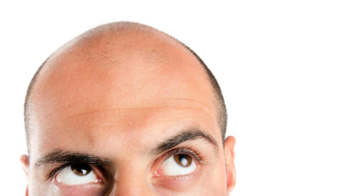 Hair Transplant - How to Decide for or Against