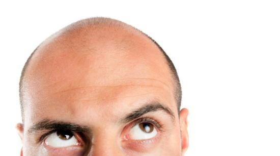Hair Transplantation for Patterened Hair Loss