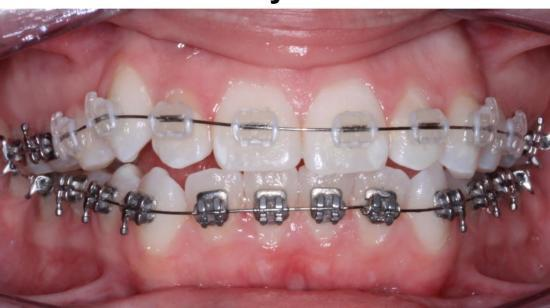 Orthodontics for Beautiful smile..!!!