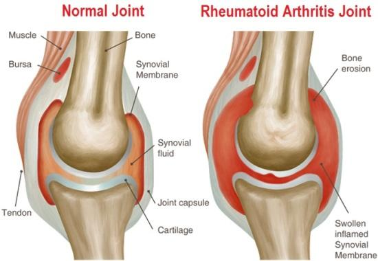 Normal joint and Rheumatoid arthritis Joint