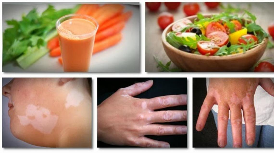 Vitiligo Treatment - Is Vitiligo Cure By Homeopathic , Or