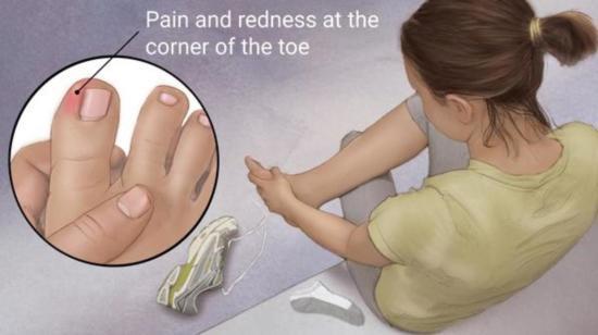 Ingrowing Toe Nail - Nail Infections