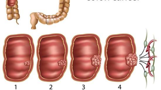 Changing Face of Colorectal (Bowel) Cancer in India