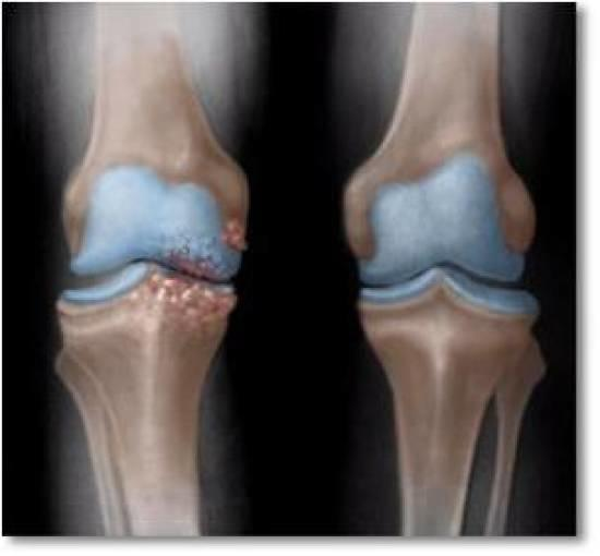 Asymmetrical joint space narrowing from loss of articular cartilage