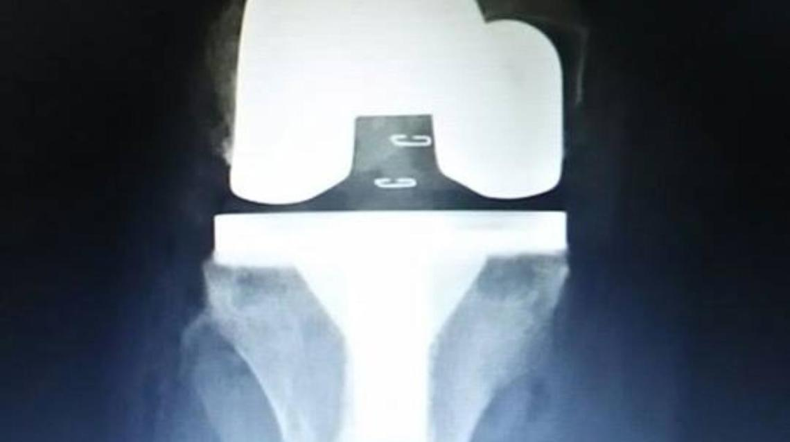 Why Are Knee and Hip Replacement Surgeries Costly at Some Corporate Hospitals Compared to Others?