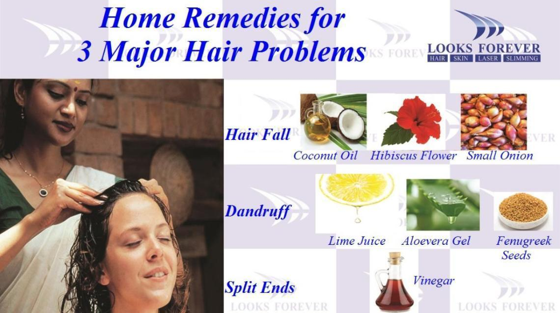 Home remedies for dandruff hair loss
