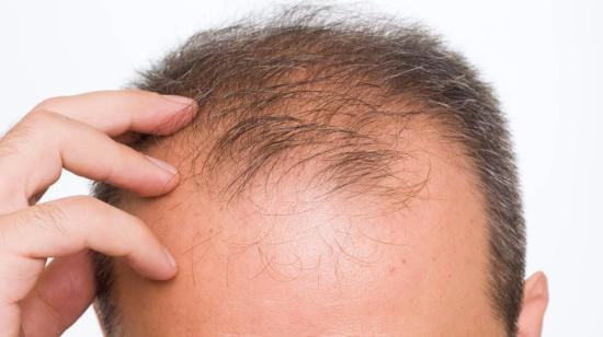 Hair Transplant Techniques Available Today