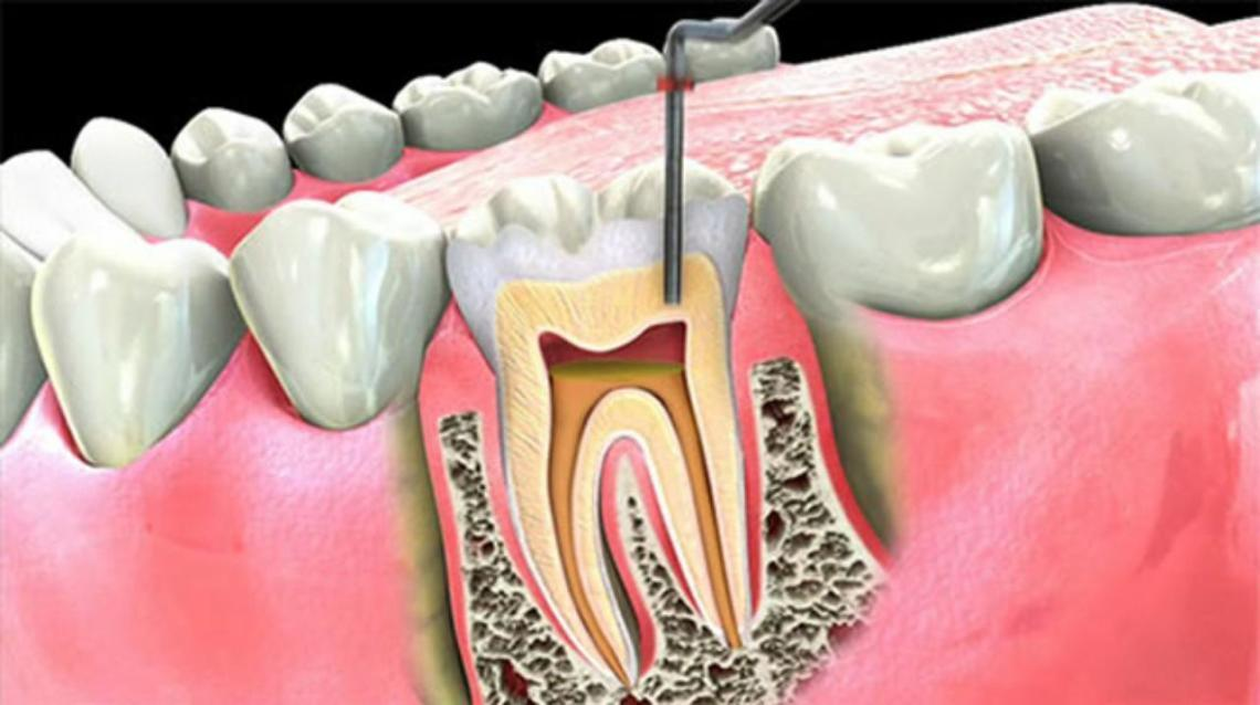 Myth and Fact About Root Canal Treatment