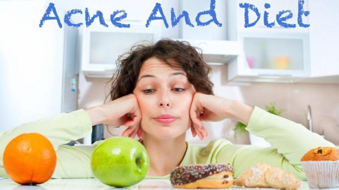 Diet and Acne: Do's and Don'ts