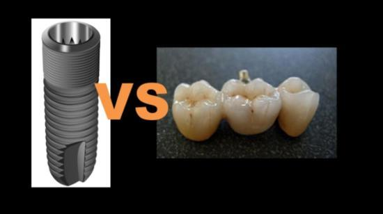 Dental Bridge vs Implants