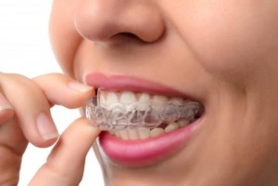 Get Orthodontic Treatment – Braces or Invisalign at Smile Up Dental Care & Implant Center