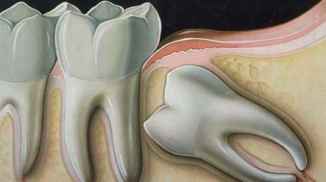 wisdom teeth no pain