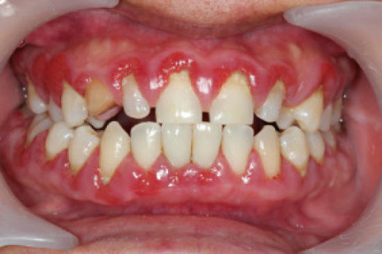 GUMS INFECTION