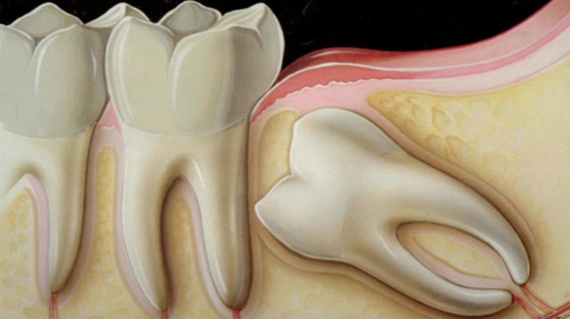 White Lesion Near Wisdom Teeth I Have Developed A White Practo Consult