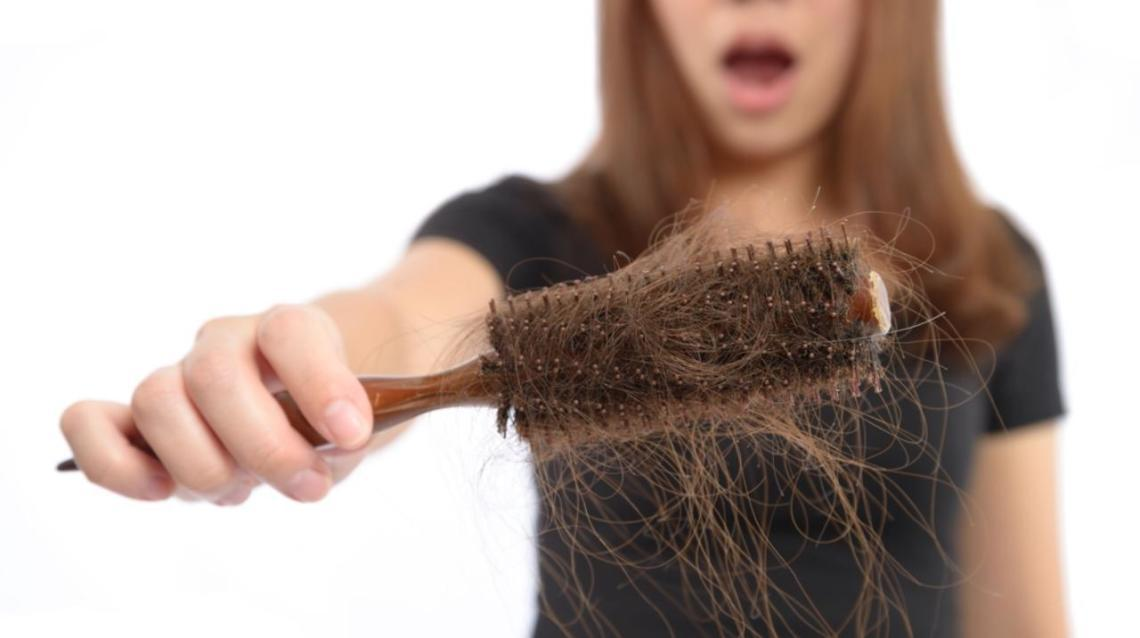August Is Hairloss Awarness Month