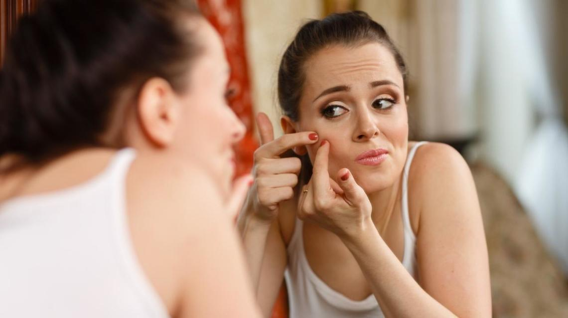 Tips for Managing Acne (Pimples)