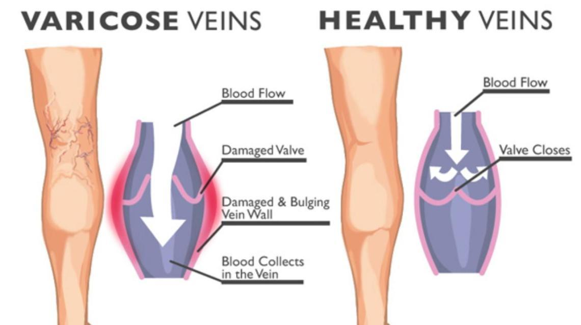 Varicose Vein - What Are They?