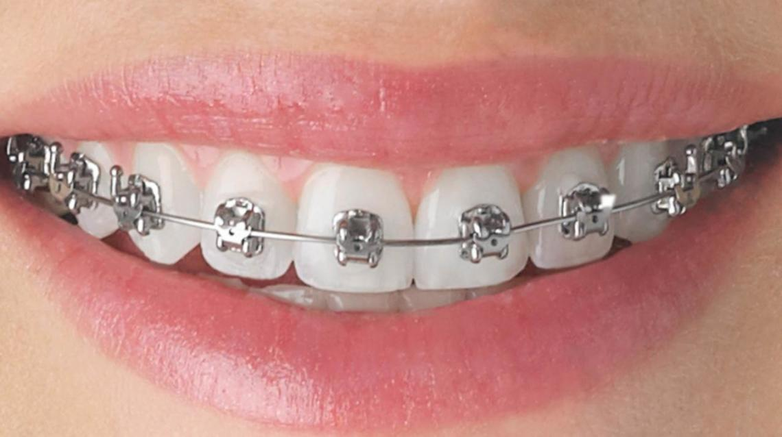 5 Things to Remember While Having Braces