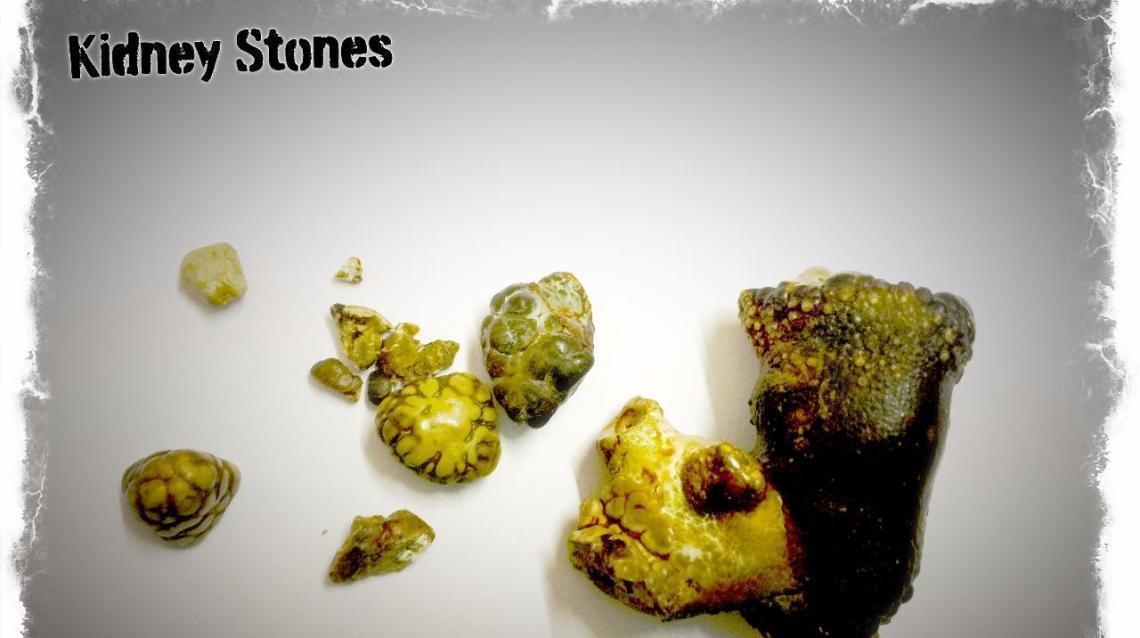 Understanding Kidney Stone Analysis