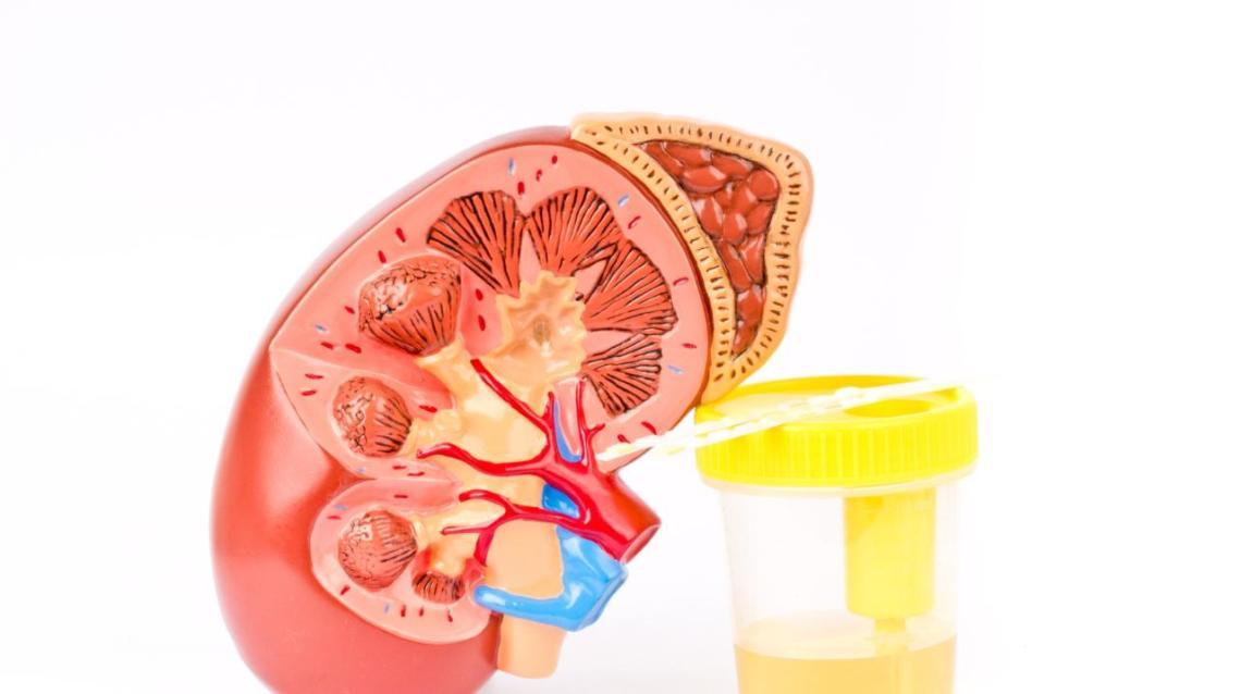 Preventing Diabetic Kidney Disease